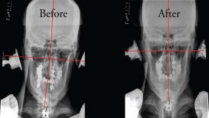 X-ray showing Anchorage chiropractor correction of cervical neck and head