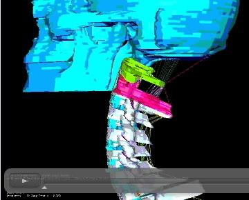 Finite element model of skull and upper cervical spine