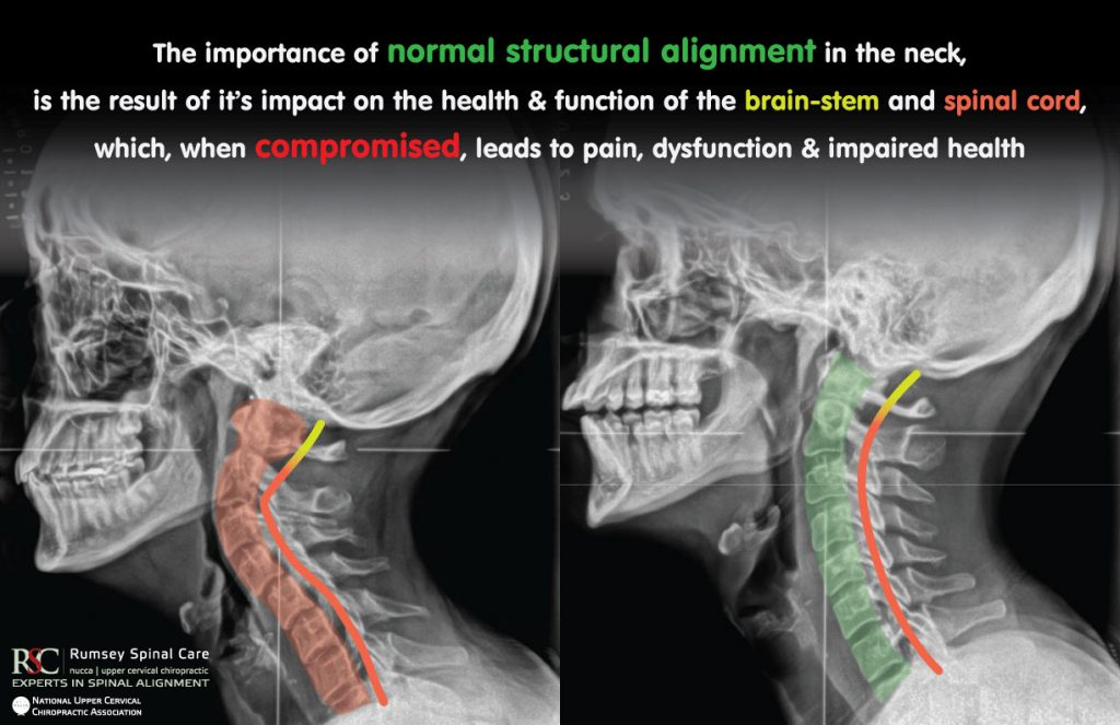 picture showing the importance of upper cervical chiropractic alignment of the atlas