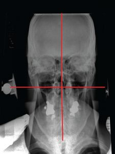 NUCCA Post orthogonal X-ray