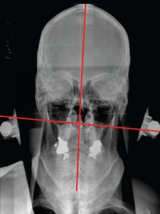 Pre NUCCA Nasium X-ray