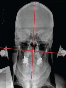 Pre NUCCA Nasium X-ray